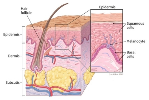 What Are Basal And Squamous Cell Skin Cancers Types Of Skin Cancer