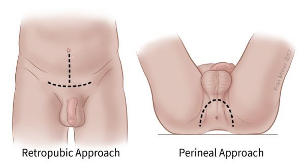 long term effects of prostate removal